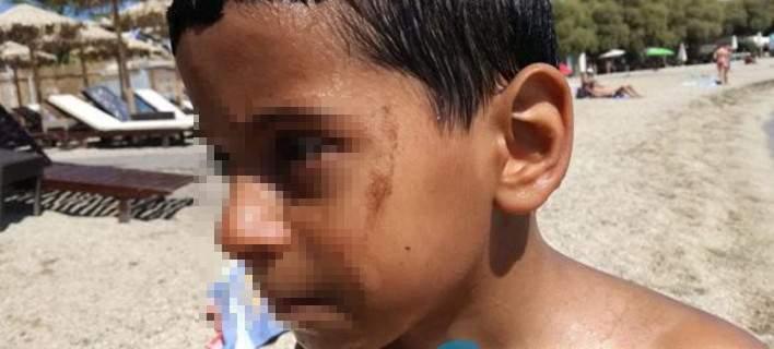 Παιδιά κάνουν μπάνιο στον Αλιμο και βγαίνουν με πίσσες (video)
